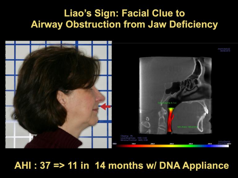 Facial Clue to Air Obstruction