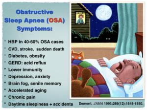 Obstructive Sleep Apnea Symptoms