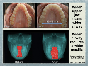 Wider Jaw and Airway