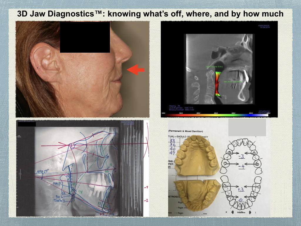 3D Jaw Diagnotsitcs