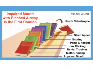 Impaired Mouth Domino
